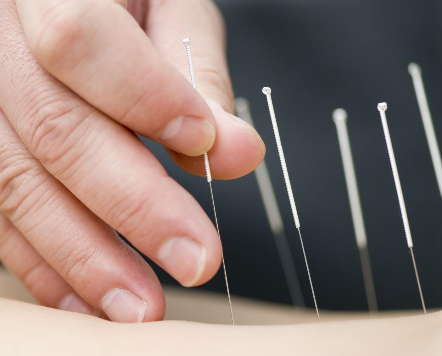 Un terapeuta inserisce degli aghi sottocute durante una sessione di agopuntura