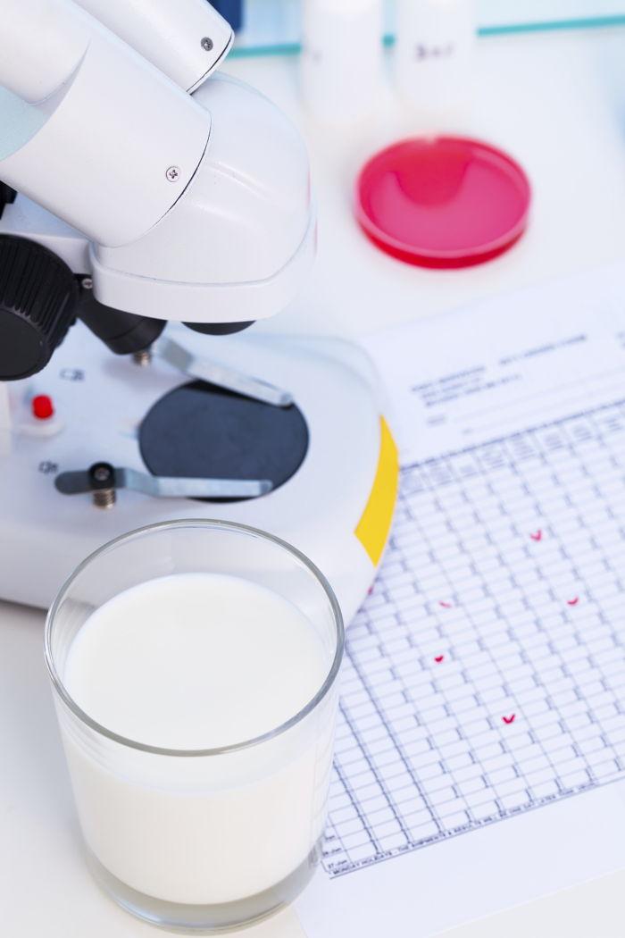 Un microscopio, un vetrino, un bicchiere di latte e i risultati di un test di intolleranza alimentare