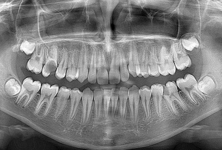 L'immagine rappresenta la panoramica dentale di un paziente