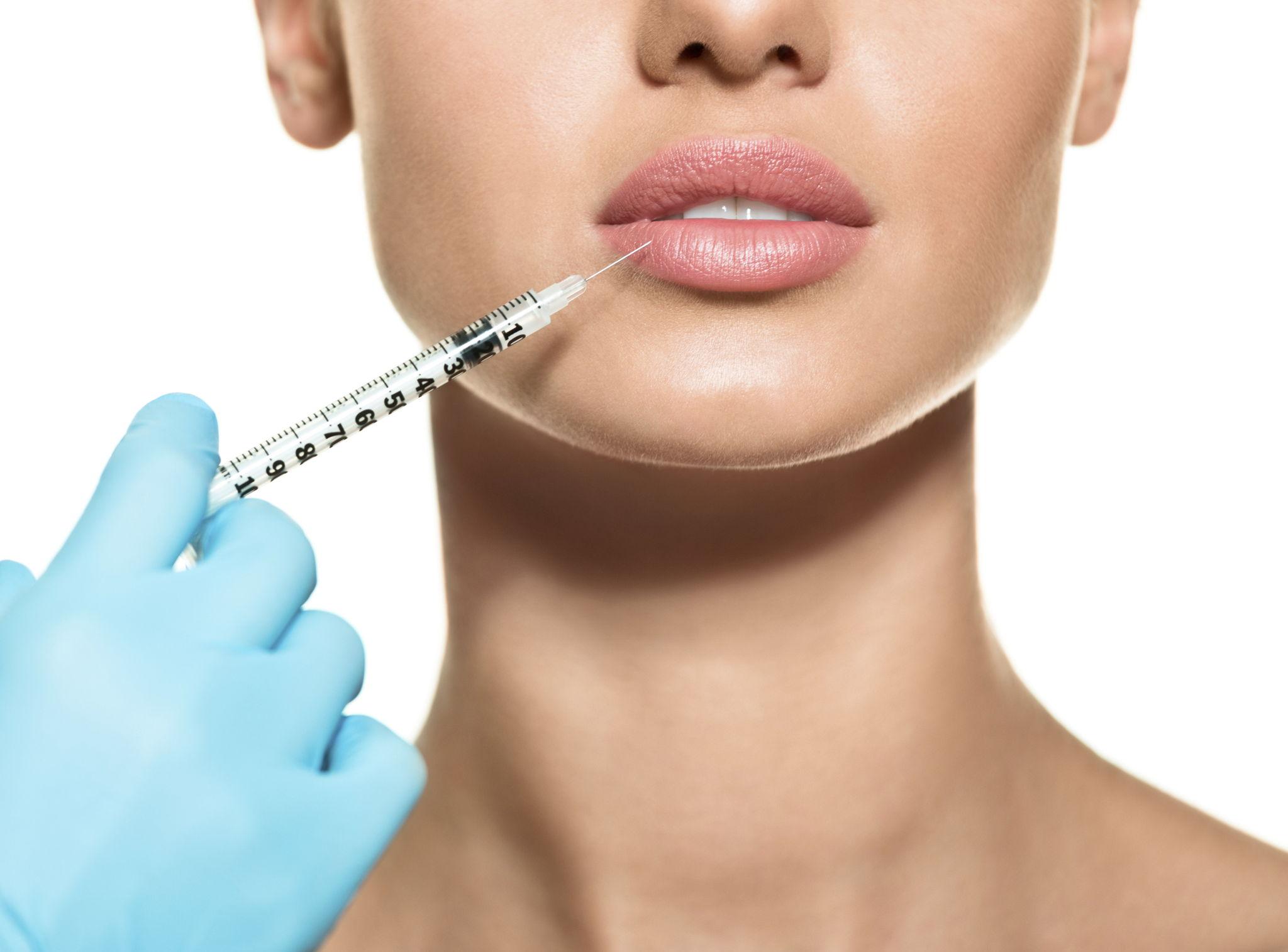 Una donna si sottopone a una iniezione di filler alle labbra
