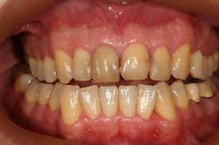 Ağrıkəsicilər diş çürüməsini sürətləndirir – Professordan xəbərdarlıq