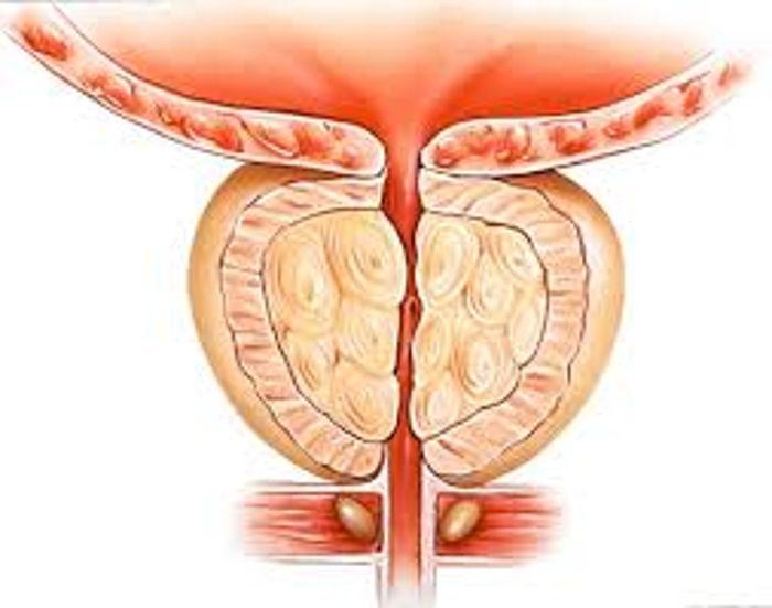 prostat iltihabı antibiyotik tedavisi