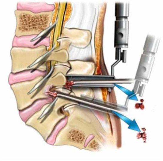 Время восстановления после операции на позвоночнике
