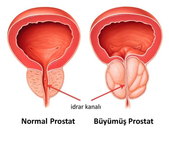 prostat büyümesi nasıl olur